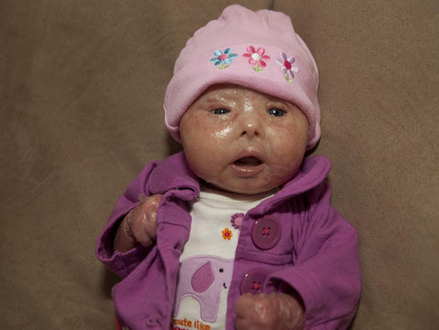 Meet Brenna, a baby with Harlequin Ichthyosis - Photo 2 ...