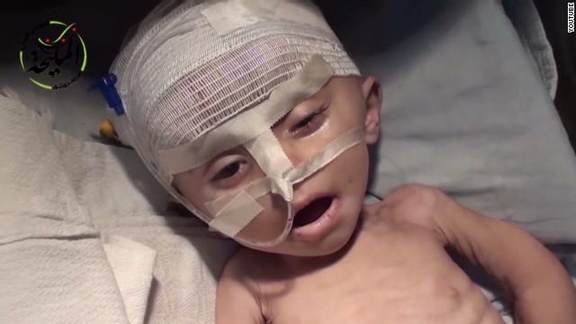 Syrian children dying of hunger - CNN
