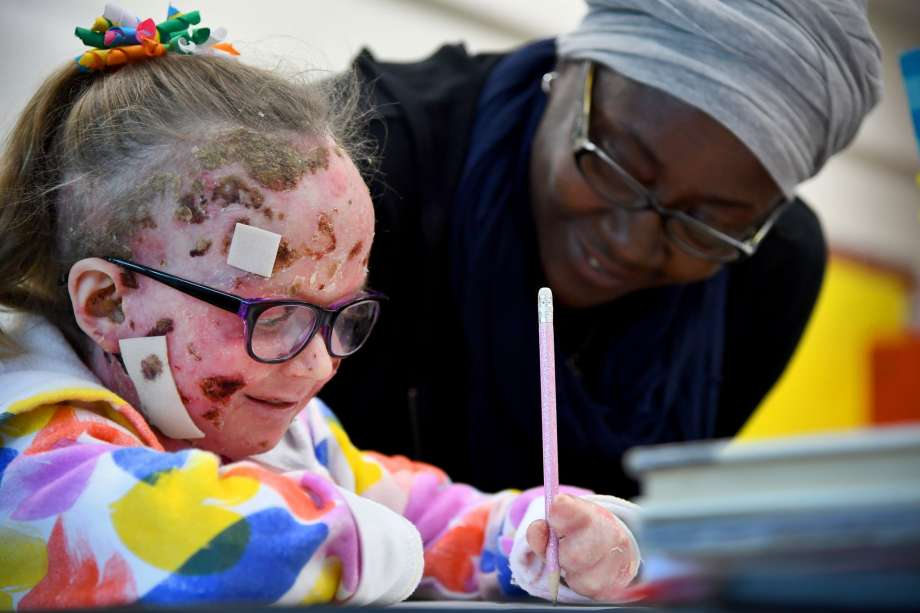 'The worst disease you've never heard of' makes children's ...