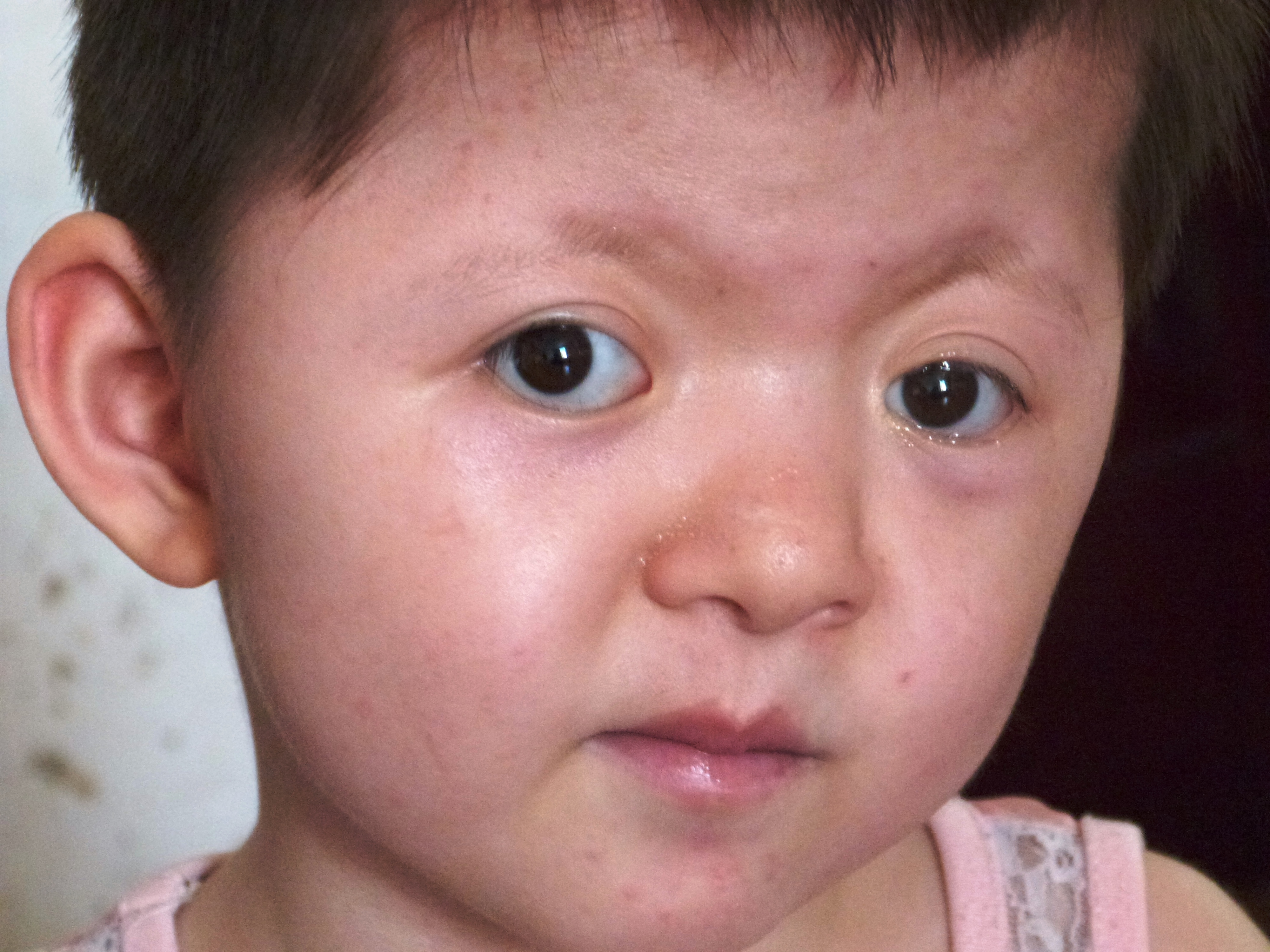 Chromosomal Abnormalities | Down syndrome - Biology