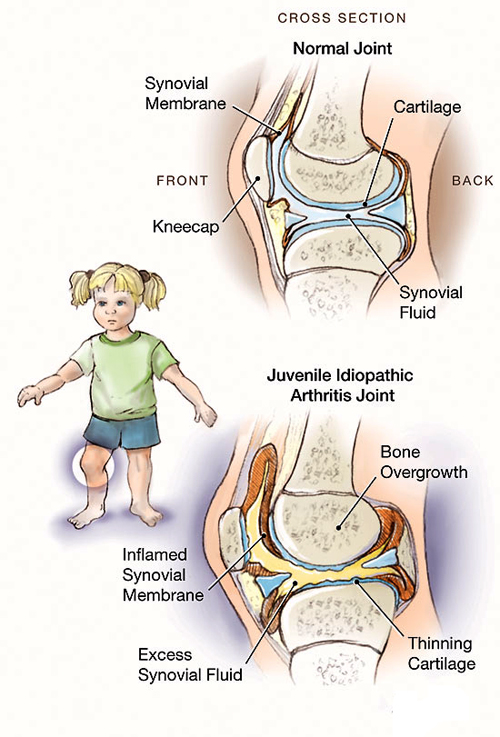 Rheumatic fever in children - causes, symptoms and ...