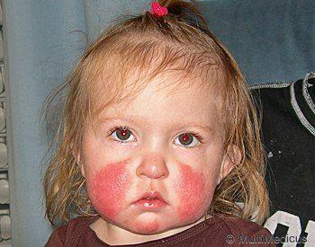 "Fifth Disease - Fever and ""slapped-cheek"" Rash, Symptoms ..."