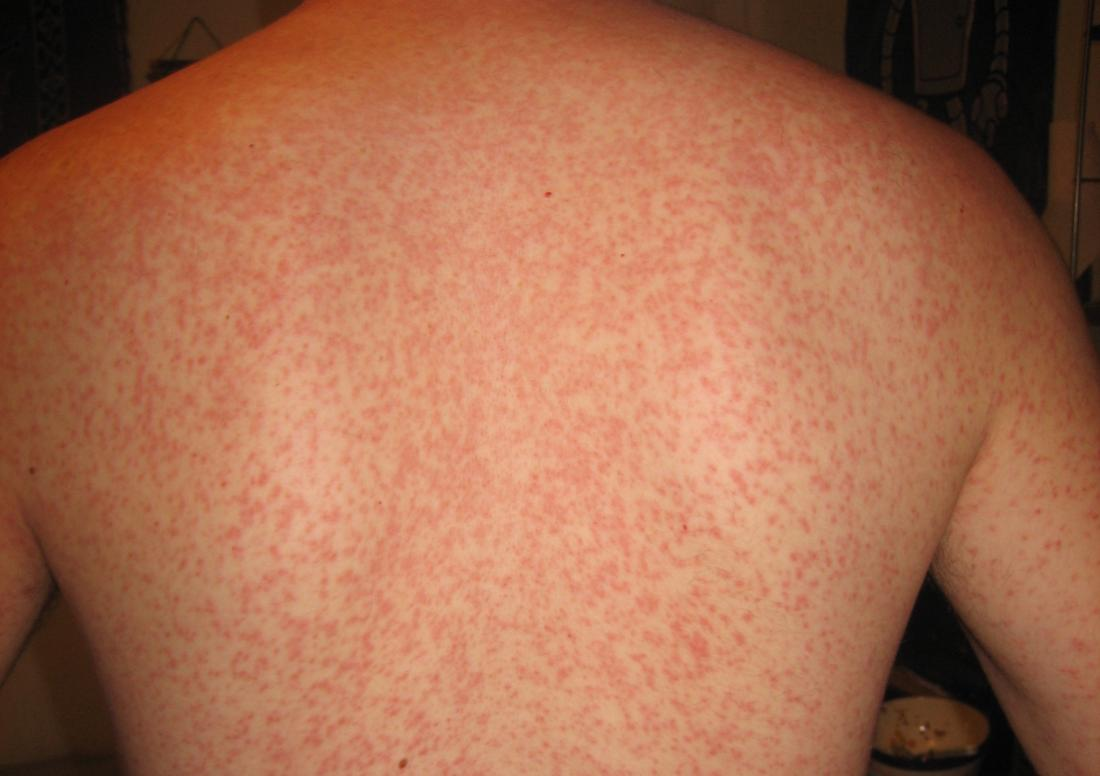 Viral rash: Types, symptoms, and treatment in adults and ...