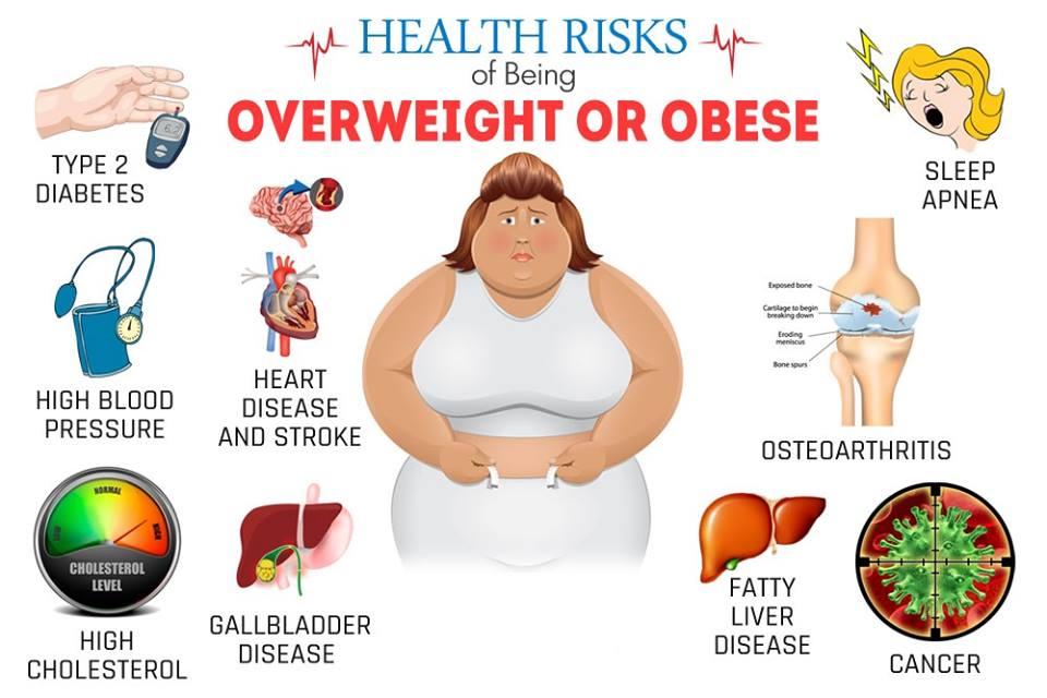 Best Obesity Treatment | Bariatric Surgeon in bangalore ...