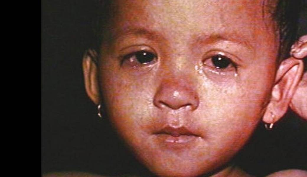 Top 10 Diseases in Africa - Most Deadly