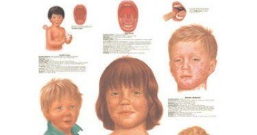 Children's diseases, List of childhood diseases and ...