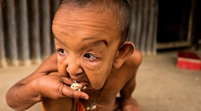 The real-life Benjamin Button lives in Bangladesh   NEWS ...