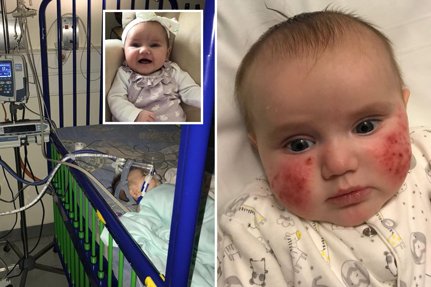My 8-week-old baby nearly died from Kawasaki disease now ...